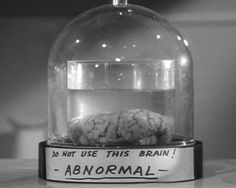 Young Frankenstein Ab normal Brain