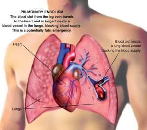 Pulmonary Embolism-300x266